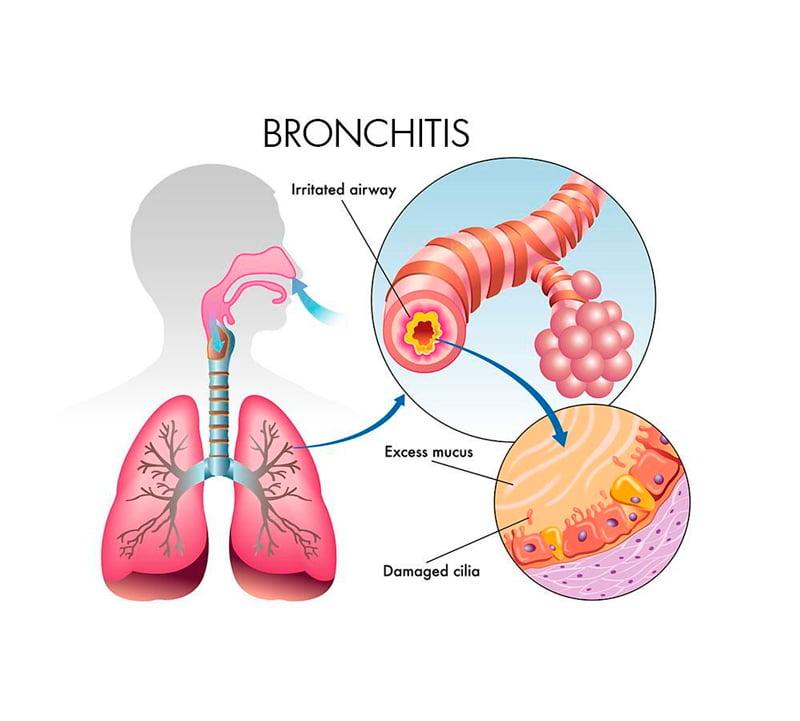 content лечения бронхита