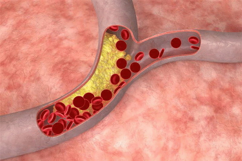 content reducir el colesterol econet ru